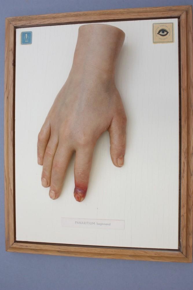 Moulage Panaritium Beginnend Hand Zeigefinger 33 5x25