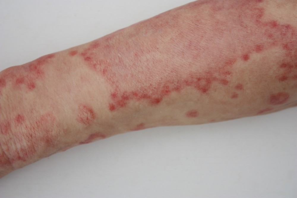 Kompostw Rmer moulage arzneimittelausschlag exanthem durch penicillin arm 28x56 cm