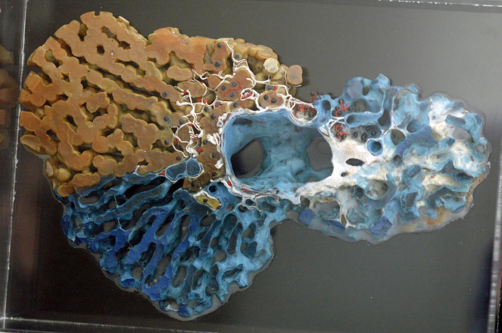 Modell der Zentralvene der menschlichen Leber ...