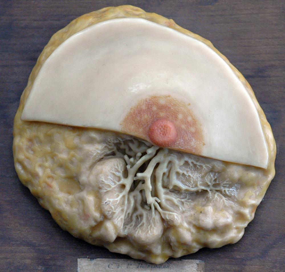 Modell einer weiblichen Brust [Heinemann] · Universitätssammlungen ...