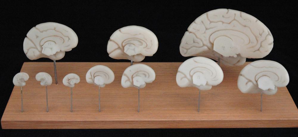 Modellreihe zur Entwicklung des menschlichen Gehirns [Ziegler 5 ...