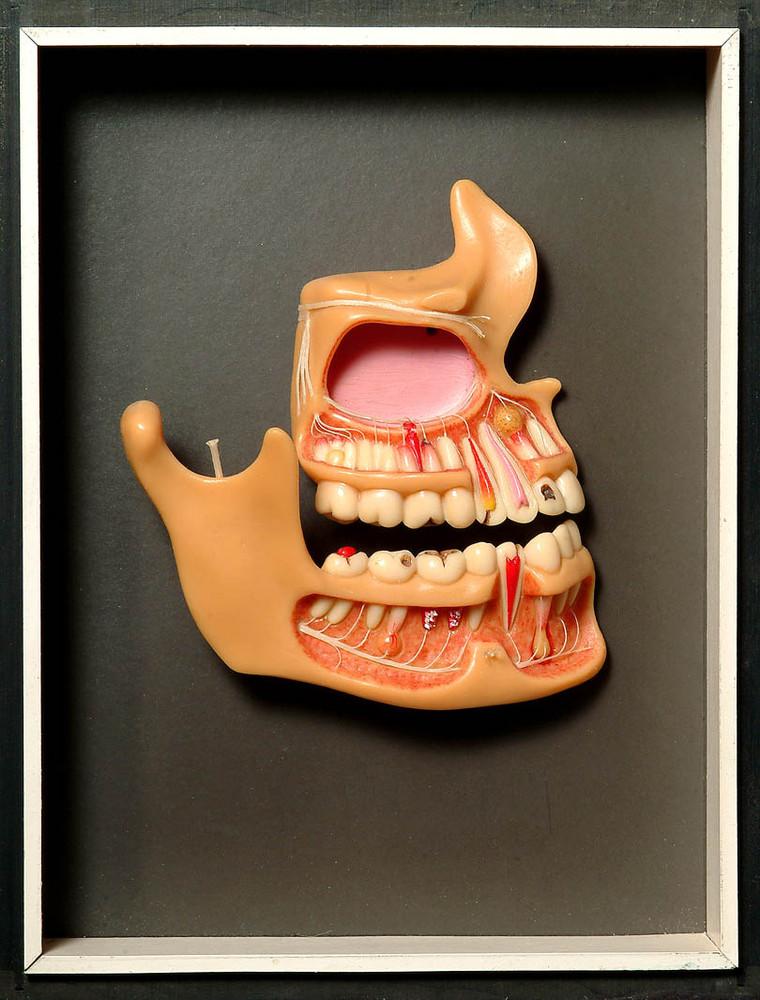 Modell von menschlichen Zähnen · Universitätssammlungen in Deutschland