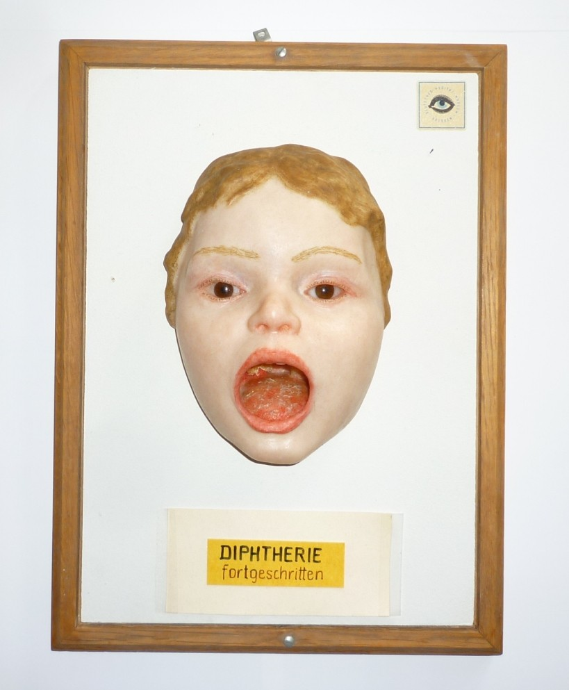 Moulage, Diphtherie fortgeschritten (Kindergesicht - frontal ...