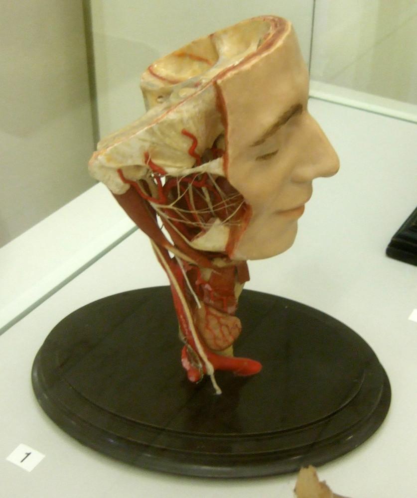 Modell des Kopfes und der Halseingeweide · Universitätssammlungen in ...