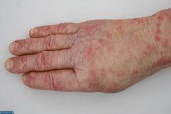 Moulage arzneimittelausschlag exanthem durch penicillin arm hand